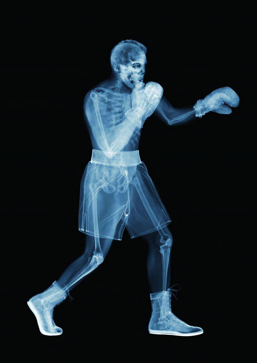 Фото рентген одягу, польская студентка кася