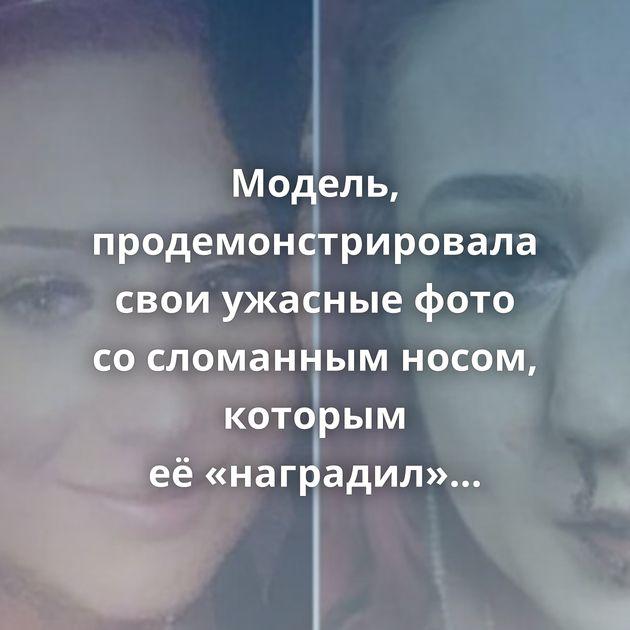 Модель, продемонстрировала свои ужасные фото сосломанным носом, которым её«наградил» незнакомец
