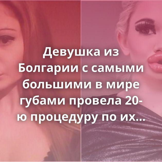 Девушка из Болгарии с самыми большими в мире губами провела 20-ю процедуру по их увеличению