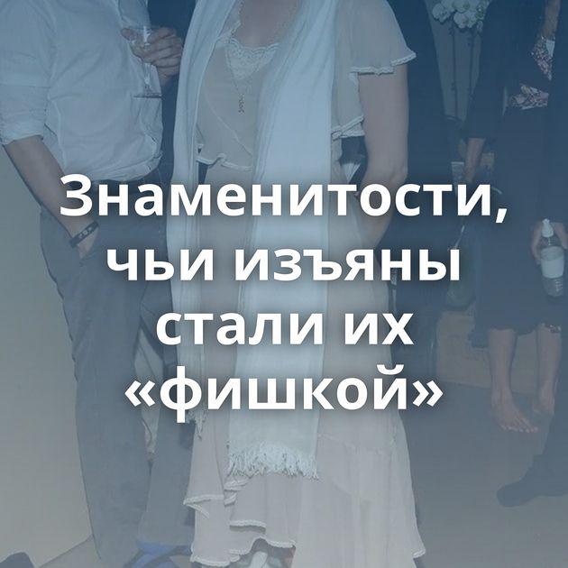 Знаменитости, чьи изъяны стали их «фишкой»